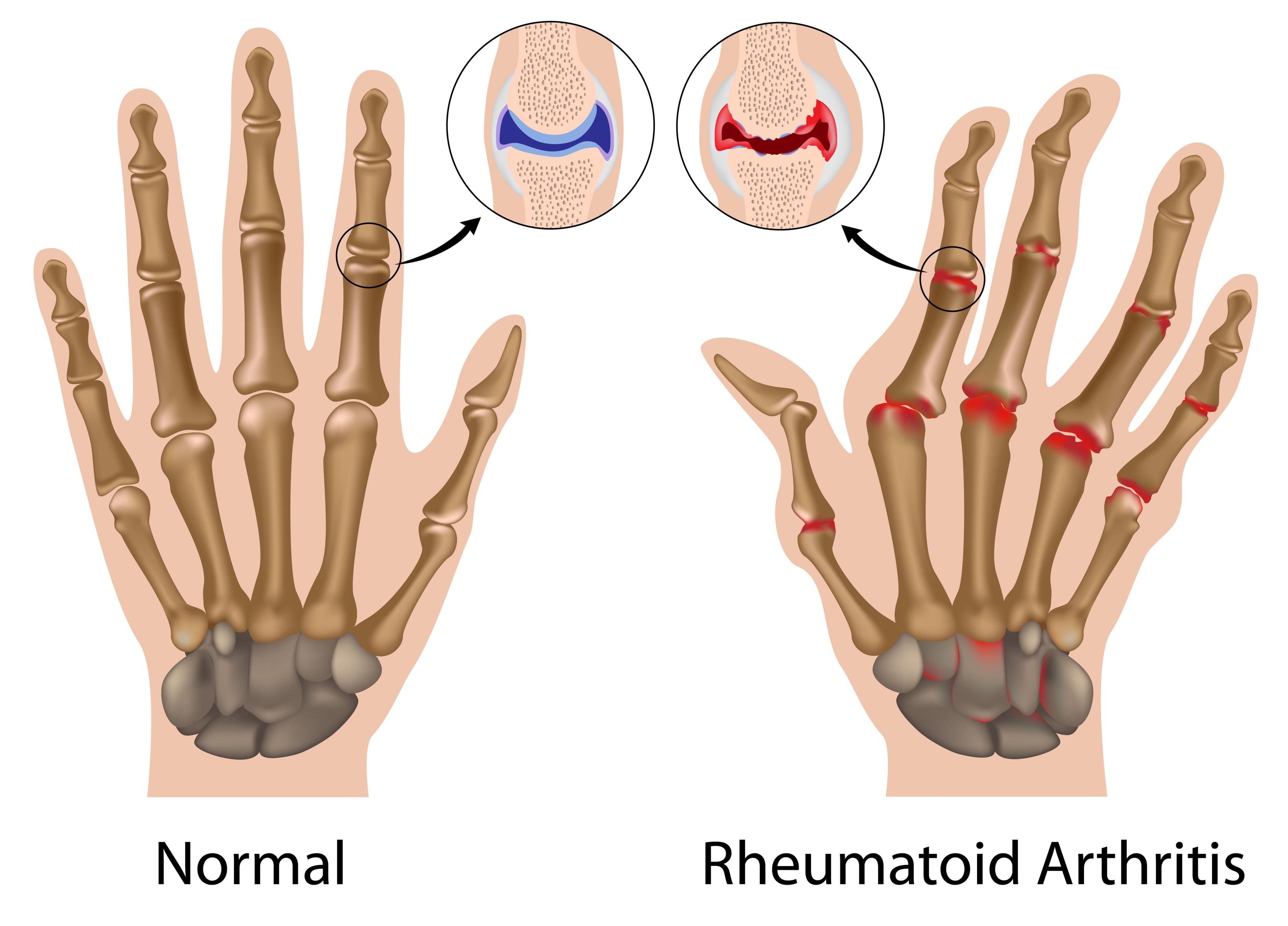 rheumatoid arthritis på dansk